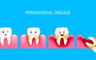 Downtown Toronto Periodontal Treatment
