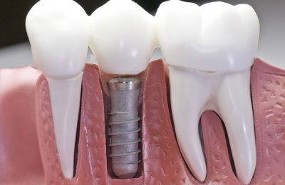 Downtown Toronto Dental Implants