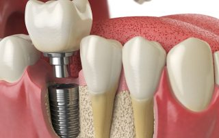 dental-centres-dental-implants-all-on-4