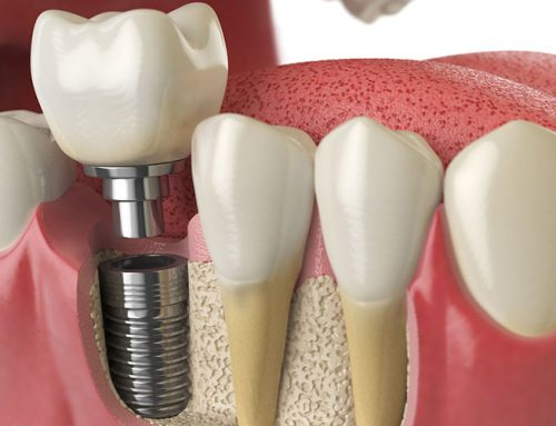 Downtown Toronto All on Four Dental Implants Oral Hygiene Tips
