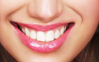 Downtown Toronto Aesthetic/Esthetic Dentistry