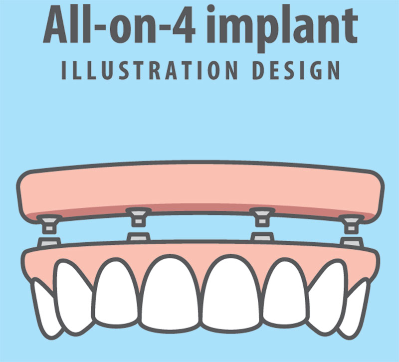 Downtown Toronto All-on-4 Implants