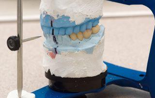 Downtown Toronto Dental Bridges