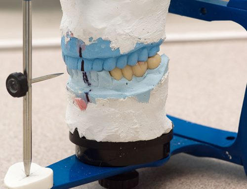 Downtown Toronto Dental Bridges Or Implants? Why Bridges Are Better